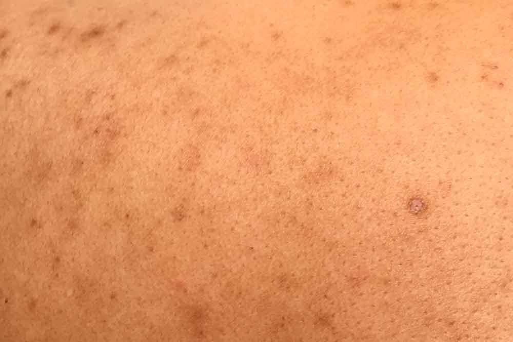Novas descobertas no tratamento do Melasma
