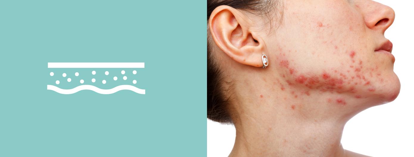 Hiperpigmentação pós-inflamatória: O que é?