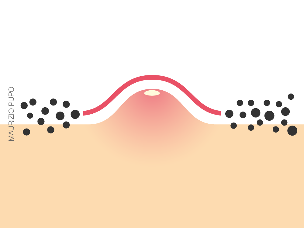Poluição do ar aumenta as lesões inflamatórias da acne