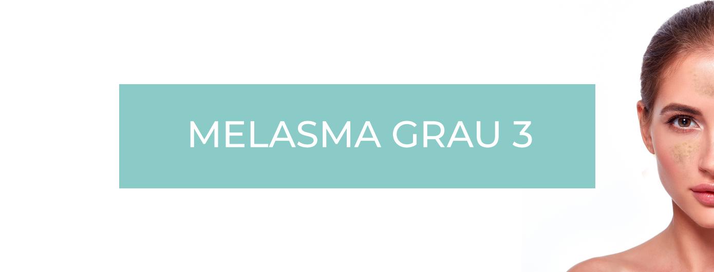 TIPOS DE MELASMA SEGUNDO O DR. MAURIZIO PUPO – MELASMA GRAU 3