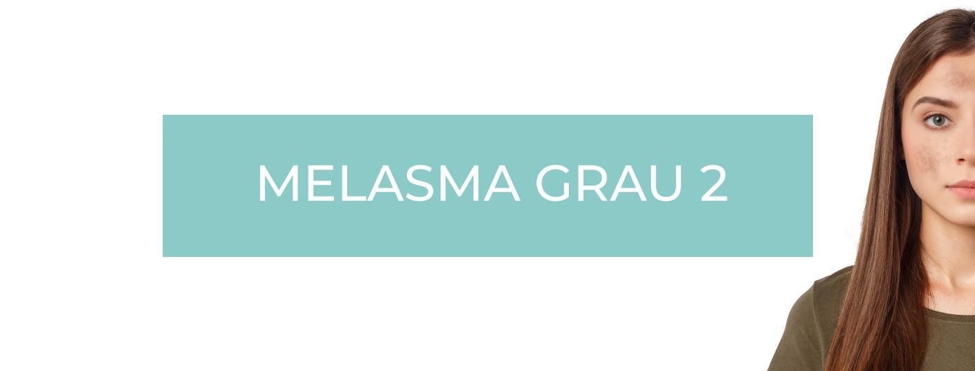 TIPOS DE MELASMA SEGUNDO O DR. MAURIZIO PUPO – MELASMA GRAU 2