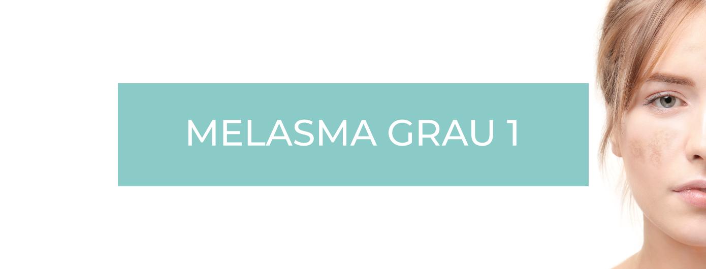 TIPOS DE MELASMA SEGUNDO O DR. MAURIZIO PUPO – MELASMA GRAU 1