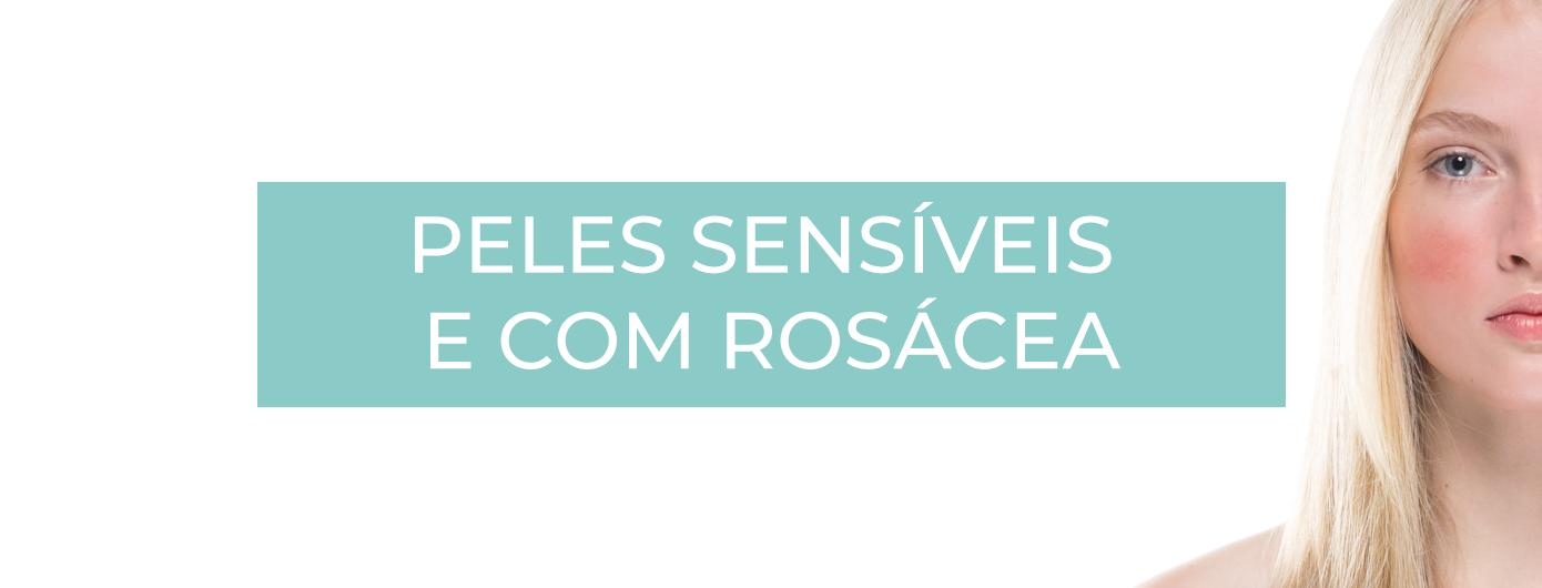 TIPOS DE MELASMA SEGUNDO O DR. MAURIZIO PUPO – PELES SENSÍVEIS E COM ROSÁCEA