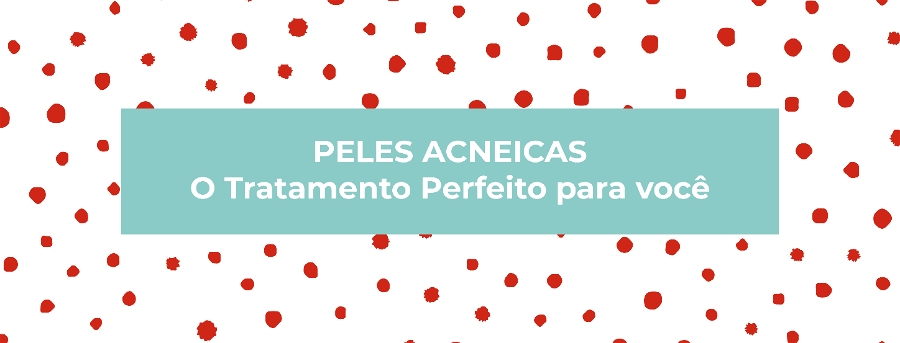 Pele acneica: entenda as características e tratamentos