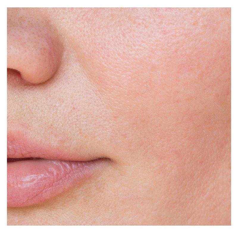 Imagem em destaque da pele do rosto saudável de uma mulher